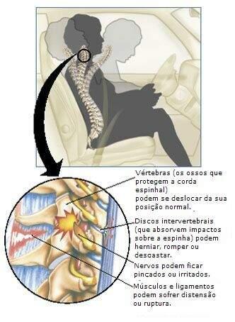 imagem mostrando os possíveis traumas às estruturas da coluna em um acidente de carro onde ocorre o efeito chicote - whiplash
