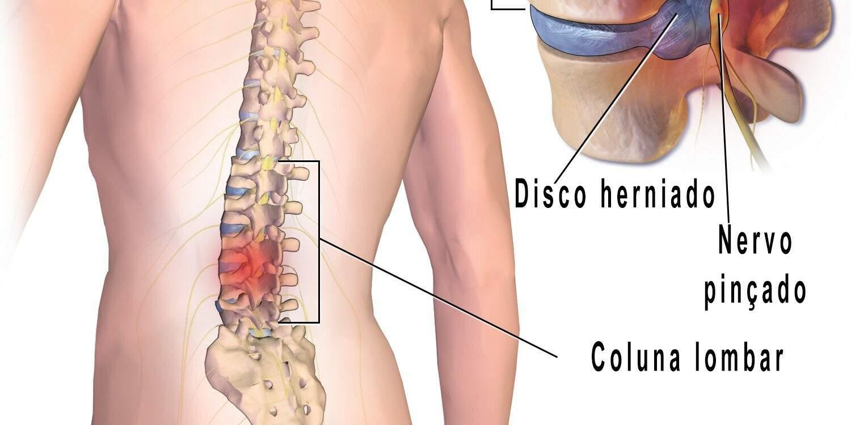 coluna com disco lombar herniado