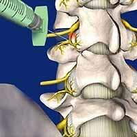 Tratamento intervencionista de dor com bloqueio facetario