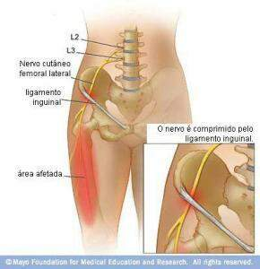 Meralgia parestesica lateral femoral