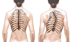 Resultado de imagem para Desvios da coluna vertebral
