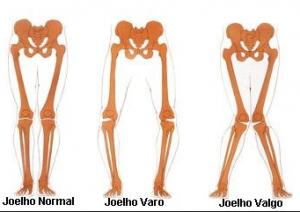 deformidades joelho