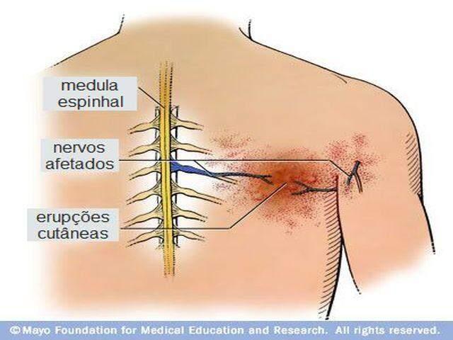 herpes zoster nervos espinhais e erupções cutâneas
